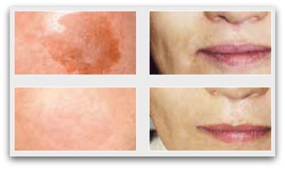白酵プラセンタ原液 肌の改善画像