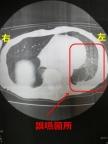 アルツ君の肺のCT