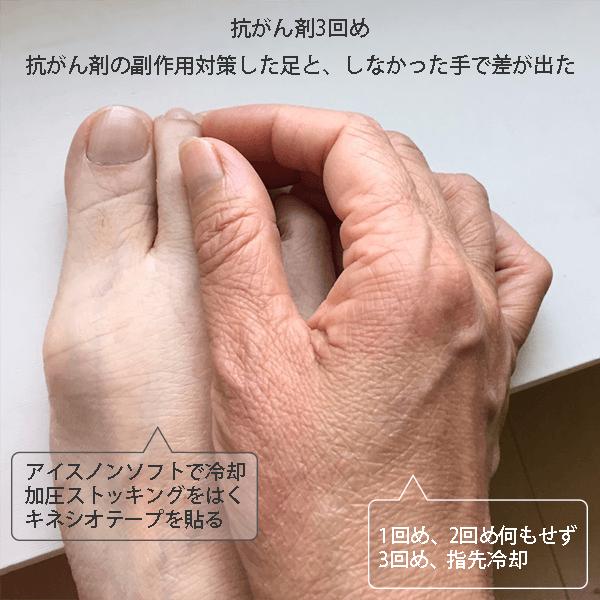 対策 副作用 抗 ん 剤 が 抗がん剤治療の副作用「吐き気・嘔吐」の原因や対処法とは