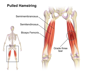 Pulled_Hamstring_20160712202729a54_20160913064920bb9.png