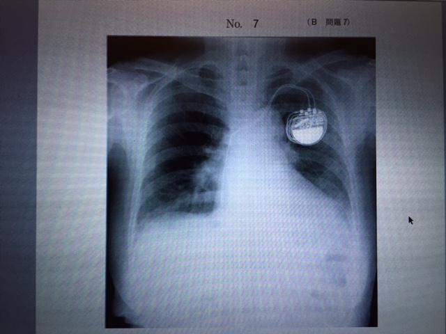 105b7 chest xp