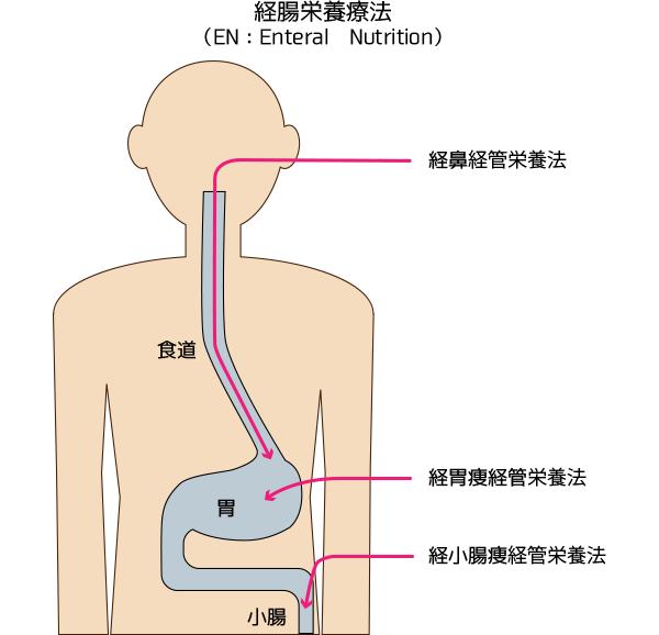 経腸栄養療法