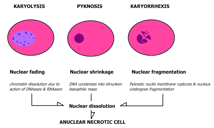Nuclear_changes.jpg