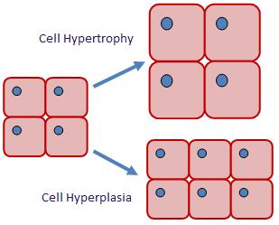 hypertrophy.png