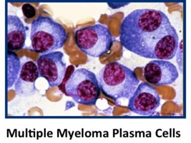 mmplasma.jpg