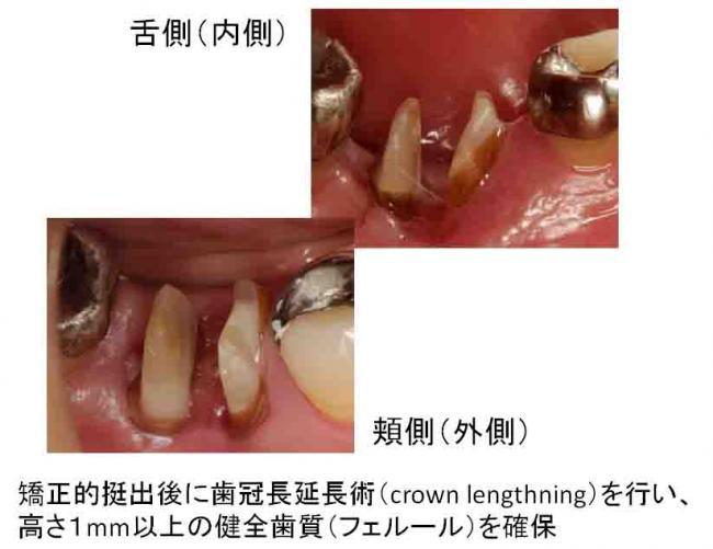 歯周外科処置2週間後