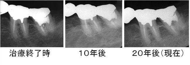 左下奥の治療後の経過