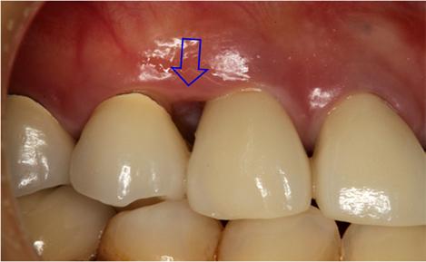 図1.右上犬歯の初診時口腔内
