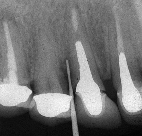 図2.右上犬歯初診時