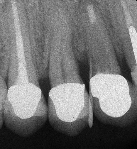 図6右上犬歯治療終了時