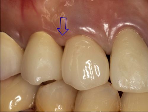 図7. 右上犬歯治療終了時口腔内