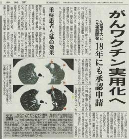news20160106.jpg