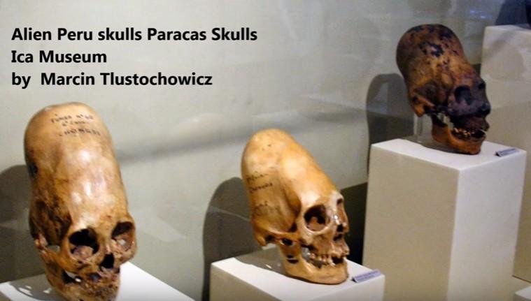 南極で「長い頭蓋骨」が発見される!人為的に頭蓋変形を施していた古代人?それとも宇宙人のものか