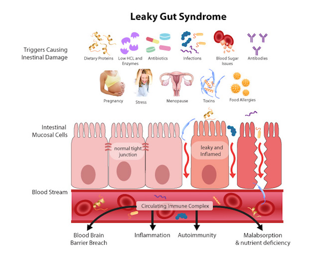 Leaky-Gut-Syndrome.jpg