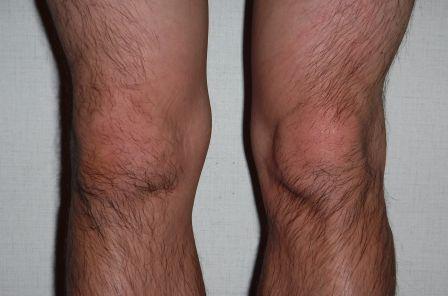 1膝が腫れる2