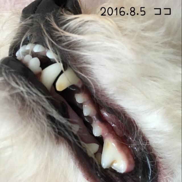 2016.8.5ココ歯
