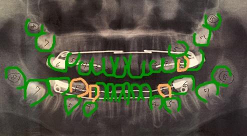 器のある暮らし 歯列レントゲン2016.6