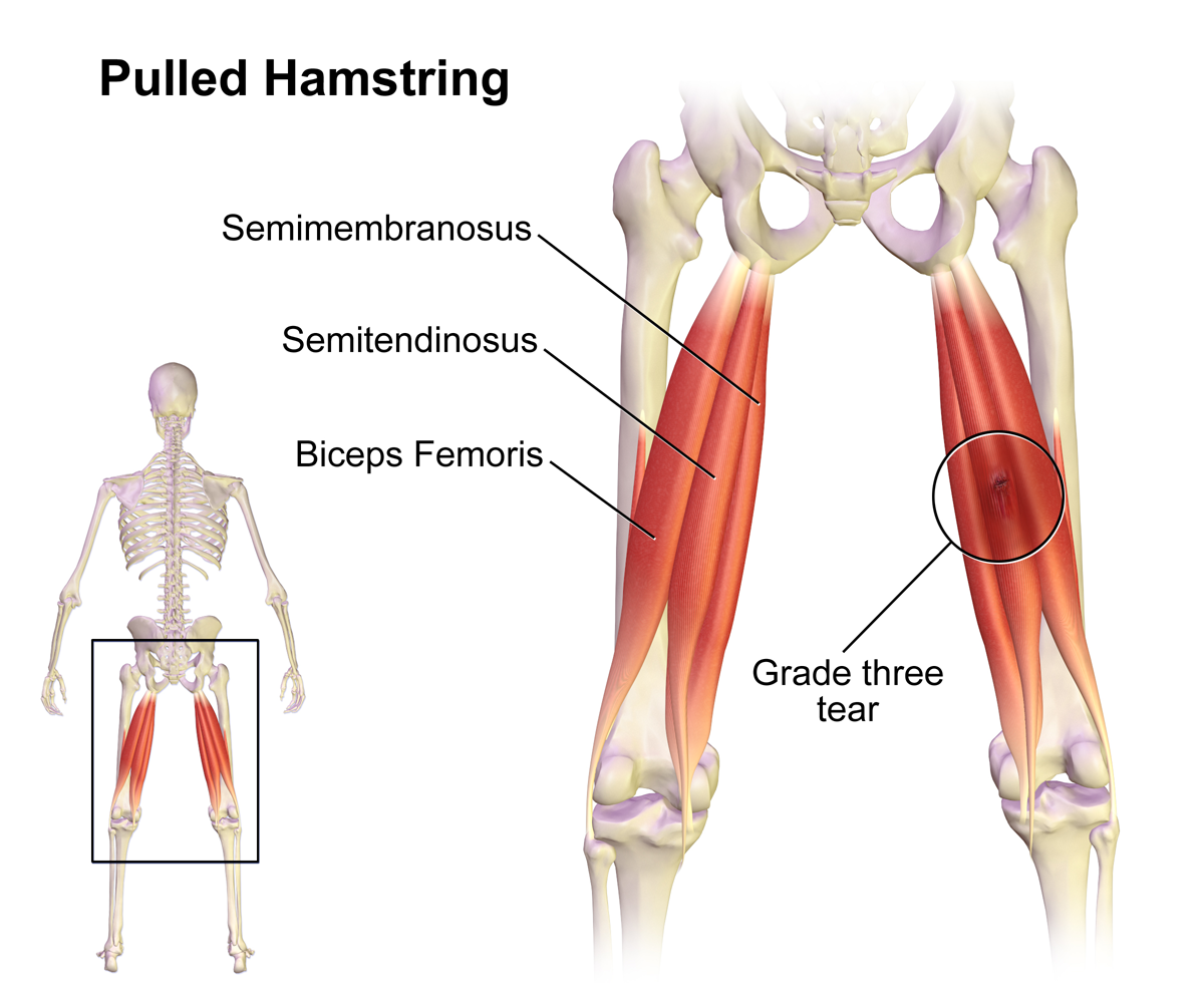 Pulled_Hamstring_2016102908344882e.png