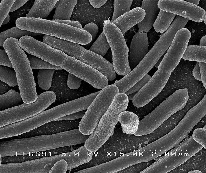 【MCR-1】アメリカで2人目の感染者を確認…どんな抗生物質も効かない「スーパー耐性菌」