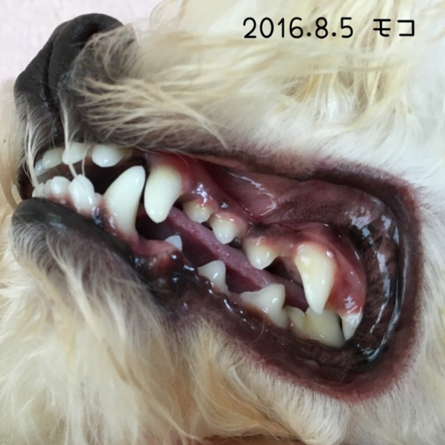 2016.8.5モコ歯
